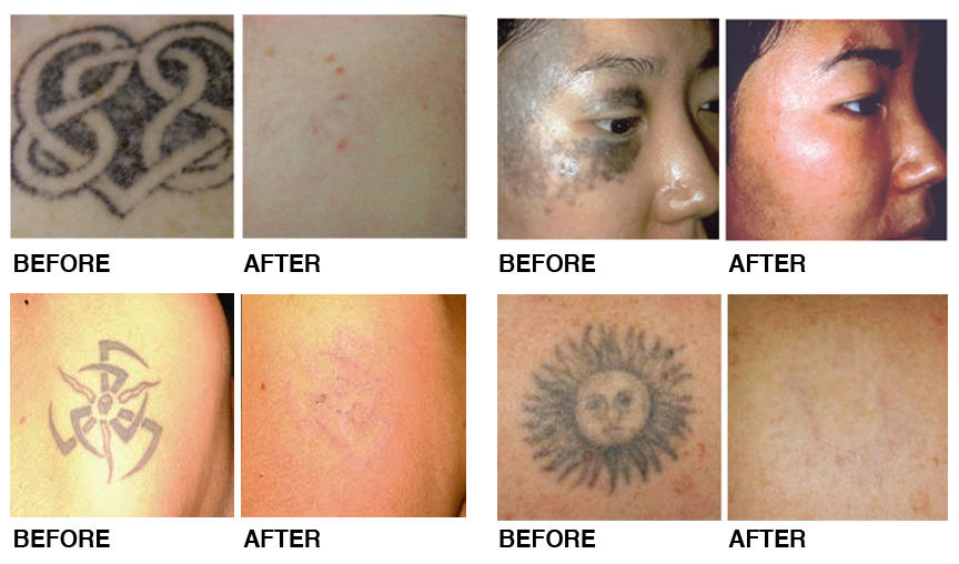 Laser Tattoo Removal Results - Northwest Aesthetics