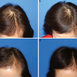 prp-hair-restoration-before-and-after-1