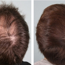 prp-hair-restoration-before-and-after-2-1024x577