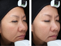 Fine-lines-and-Wrinkles-Before-and-After