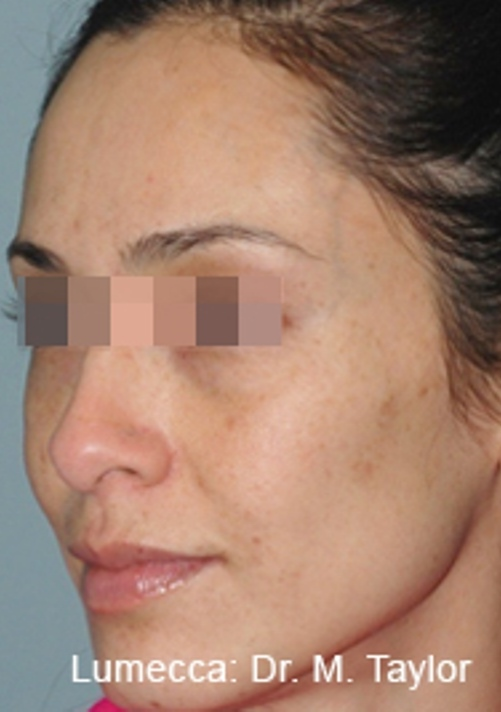IPL PhotoFacial - Northwest Aesthetics