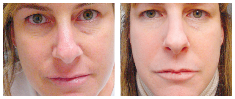 Rosy Complexion Flushed Cheeks You May Have Rosacea