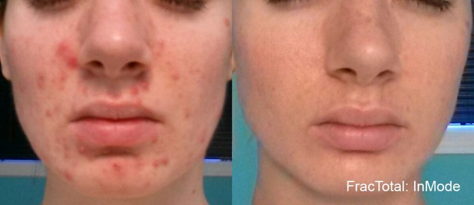 What You Are Doing That May be Causing Acne - Northwest